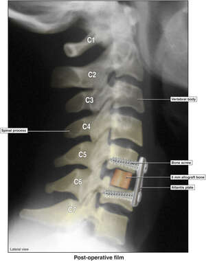 Anterior Cervical Discectomy and Fusion with Application of Atlantis Hardware
