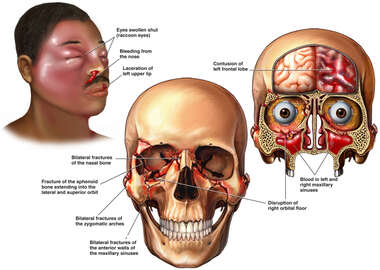 Head and Face Injuries