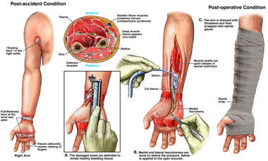 Initial Debridements of Electrical Burns with Fasciotomies of the Right Wrist and Forearm