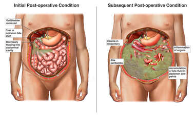 Post-operative Bile Leakage with Resulting Peritonitis