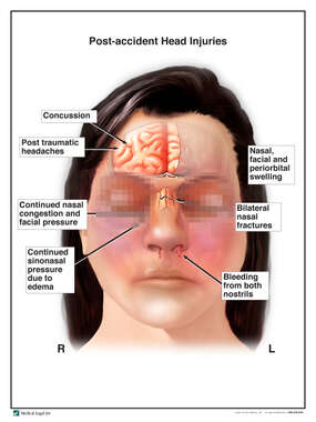 Female with Post-accident Head and Brain Injuries