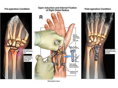 Right Wrist Injury with Surgical Repairs