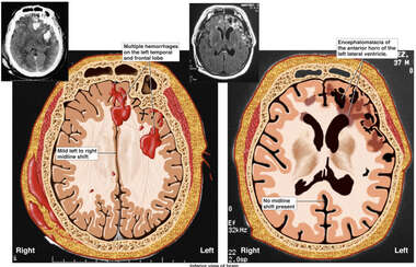 Post-accident Brain Injury and Current Condition