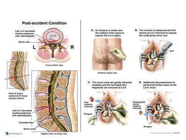 Lumbar Spine Injuries with Surgical Decompression Procedure