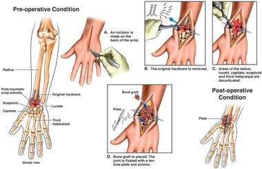 Post-traumatic Wrist Arthritis with Recommended Surgical Fusion