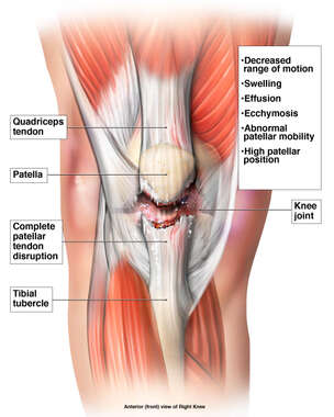 Right Knee Patellar Tendon Rupture