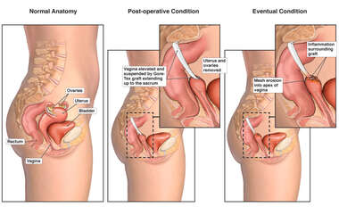 Sacral Colpopexy Procedure with Eventual Post-operative Complications