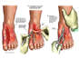 High-pressure Injection Injury to the Left Foot with Initial Surgical Repairs