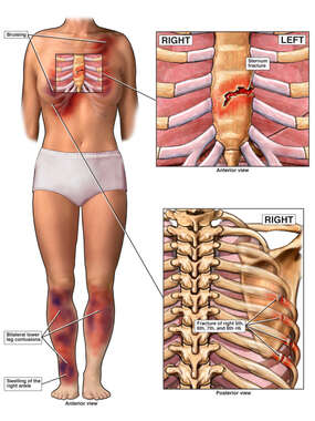 Female Figure with Post-accident Chest Injuries