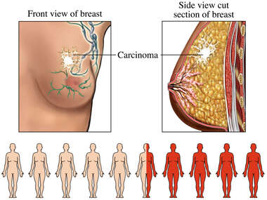 Breast Cancer with 45% Mortality