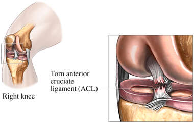 Tear of the Anterior Cruciate Ligament (Torn ACL)