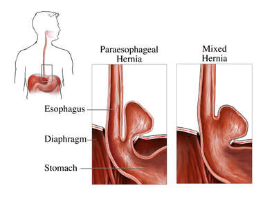 Types of Diaphragmatic (Diaphragm) Hernias