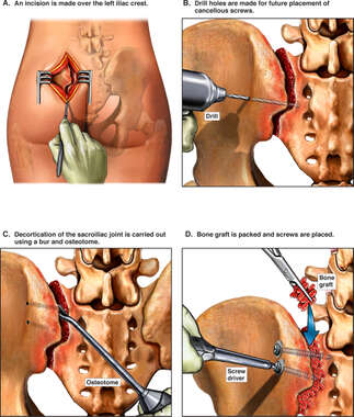 Decortication of the Sacroiliac Joint