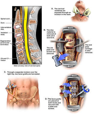 Additional Cervical Spine Deterioration with Extension of Previous Fusion