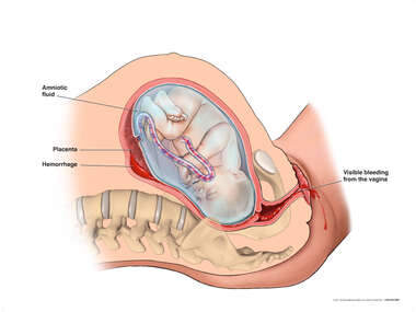 Retroplacental Abruption and Vaginal Bleeding with Intact Membranes