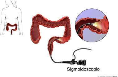 Sigmoidoscopy Procedure - Colon (Colorectal) Cancer Examination