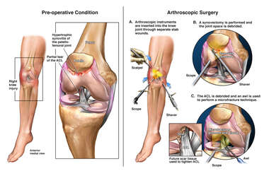 Right Knee ACL Tear with Arthroscopic Surgical Repair