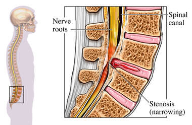 Spinal Stenosis of the Lumbar Spine