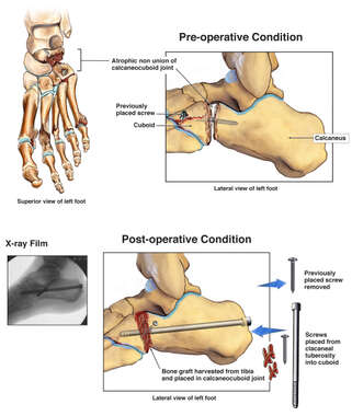 Repeated Non-union of Talar-Calcaneal Joint with Additional Surgical Repairs