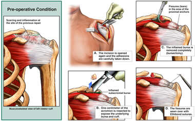 Repair Persistent Rotator Cuff Damage