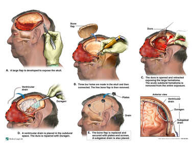 Left Sided Subdural Hematoma with Surgical Craniotomy Procedure