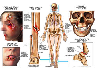 Lacerations to the Face, with Fractures of the Lower Leg, Jaw and Ankle