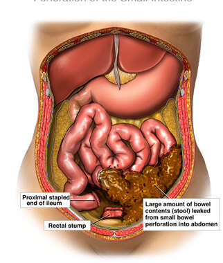 Total Colectomy with Intra-operative Perforation of the Small Intestine