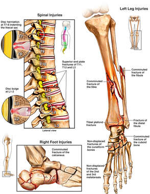 Fractures to the Spine, Right Lower Leg and Foot