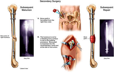 Non-union of the Humerus with Secondary Surgery