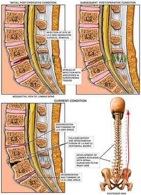 Intra-operative Infection of the Lumbar Spine
