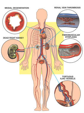 Blood Vessel Diseases