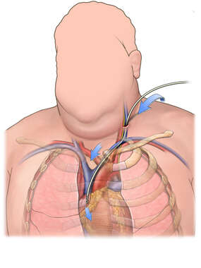 Anterior View of a Male with Heart Catheters