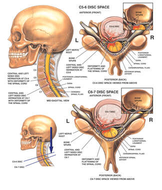 Cervical Disc Herniations Impinging the Spinal Cord