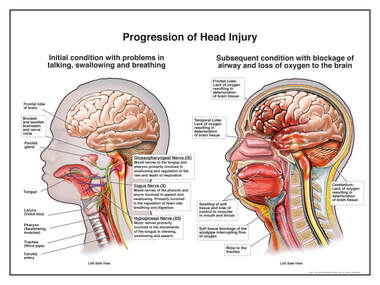 Progression of Head Injury