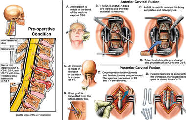 C5-6 and C6-7 Cervical Spine Injuries with Anterior and Posterior Fusion Procedure