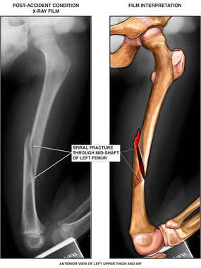 Spiral Fracture of the Femur