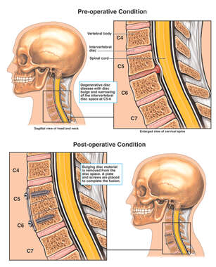 Cervical Spine Injuries with Surgical Fixation