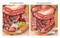 Perforated Diverticulitis with Surgical Resection