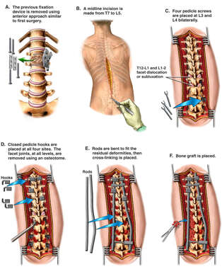 T8 to L4 Spinal Fusion