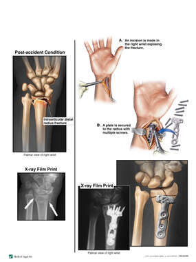 Open Reduction and Internal Fixation of Right Distal Radius Fracture