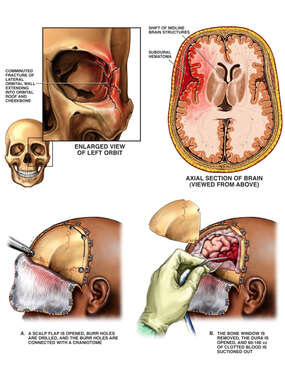 Post-accident Head Injuries with Craniotomy Procedure