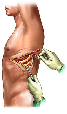 Thoracotomy Incision