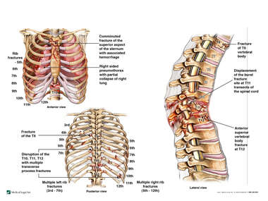 Multiple Chest and Back Fractures
