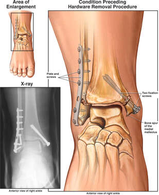 Surgical Fixation of the Distal Fibula and Medial Malleolus Fracture