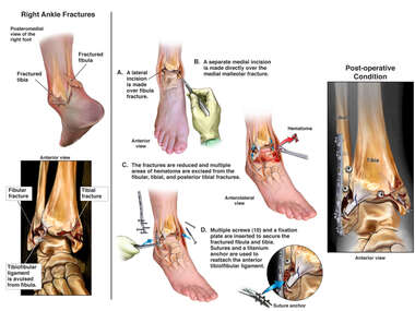 Right Ankle Fractures and Surgical Fixation
