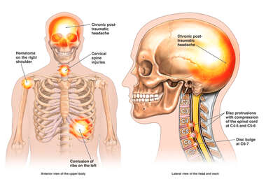 Front and Side Views of Male Skeleton with Pain Flares at Head, Shoulder, Cervical and Rib Injury Sites