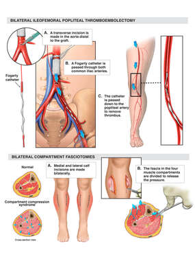 Bilateral Ileofemoral Popliteal Thromboembolectomy and Bilateral 4 Compartment Fasciotomies