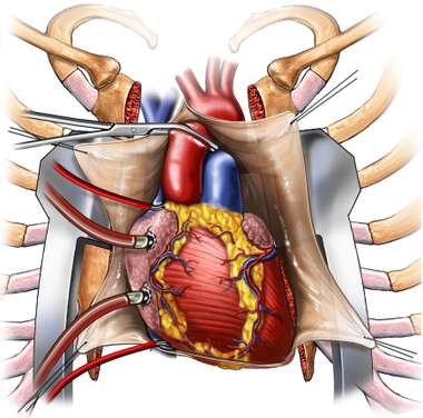 Heart in Thorax with Rib Spreaders, Anterior View