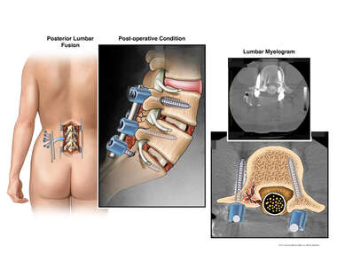 Lumbar Spine Fusion with Misplaced Pedicle Screw