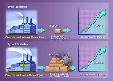 Diabetes, schematic